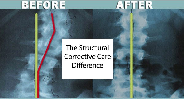 Structural Corrective Care Chiropractic Columbus, Ohio