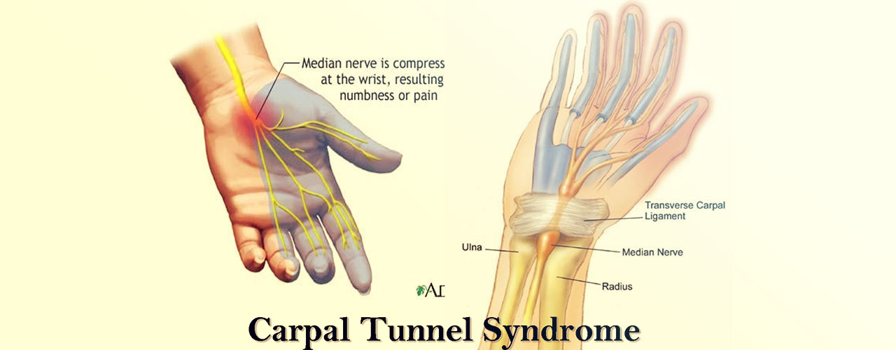 Your Chiropractic Hilliard Treatment Options for Carpal Tunnel Syndrome